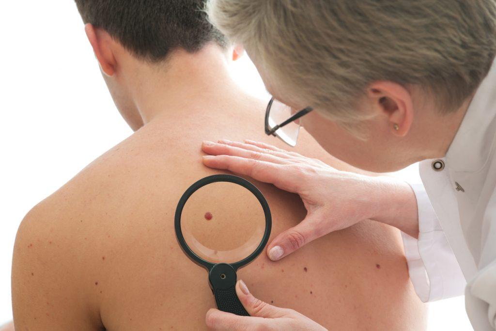 1b7ea4fe2 Segundo ela, a melhor forma de prevenir começa na consulta com o  dermatologista, para que o profissional analise o tipo de pele e indique  como a proteção ...