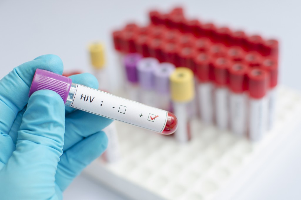 HIV blood sample